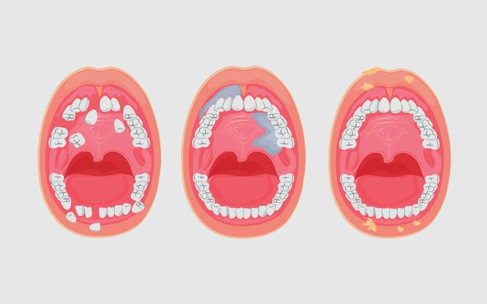 A Guide to Oral Cancer