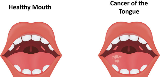 The Signs and Symptoms of Oral Cancer