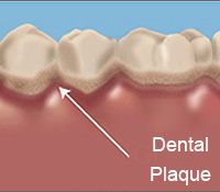 best-dentist-for-plaque-removal-staten-island-01