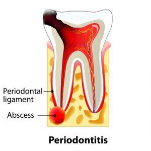 dental-abscess-emergency-dentist-03