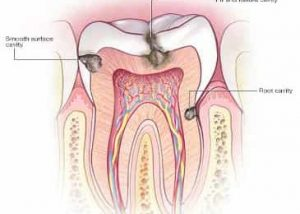 top-best-dentist-nyc-for-tooth-decay-symptoms-02