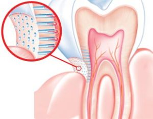 tooth-hypersensitivity-info-causes-top-dentist-expert-02