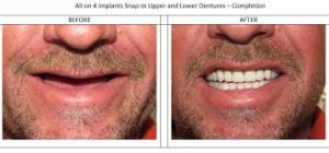 before-after-pictures-dentures-dentist-near-me-03