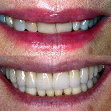 before-after-pictures-porcelain-veneers-03