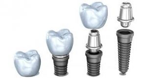 dental-implant-graphic-technical-parts-dental-experts-02