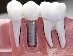 dental-implant-info-dentistry-top-dentists-si-ny-01
