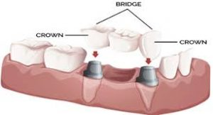 dentist-for-crowns-bridges-staten-island-ny-03