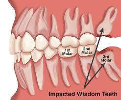 dentist-for-impacted-wisdom-teeth-staten-island-02