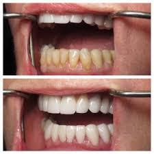 dentist-for-porcelain-veneers-01