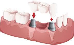 dentistry-info-bridges-staten-island-02