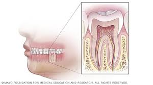 diagram-tooth-need-root-canal-staten-island-dentist-02