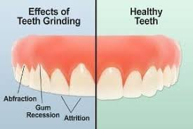 effects-teeth-grinding-night-top-dental-expert-si-ny-nyc-02