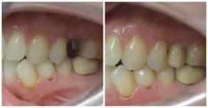 example-dental-implant-molar-03