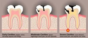 graphic-cavitiy-progression-top-si-nyc-dentist-03