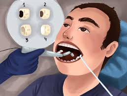 how-cavities-filled-top-cosmetic-dentist-staten-island-04