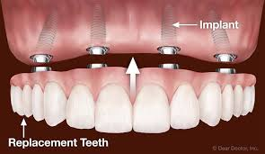 how-dentures-connect-to-mouth-expert-info-02