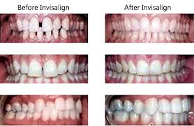 Safe and Effective Invisalign