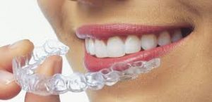 invisalign-dentist-staten-island-01