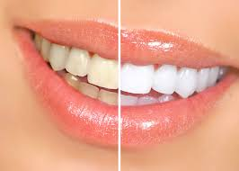 top-dentist-for-teeth-whitening-si-01