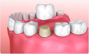 top-nyc-dentist-for-crowns-general-info-01