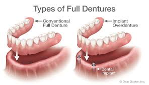 types-of-dentures-top-dentist-si-ny-01
