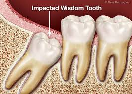 wisdom-tooth-extraction-general-information-01