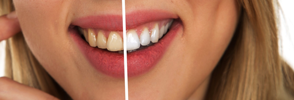 Best Lumineers dentists veneers