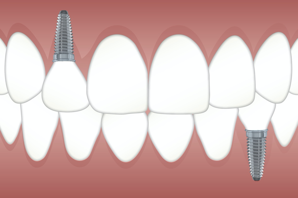 Best Tooth Implant Dentist | Staten Island, NY