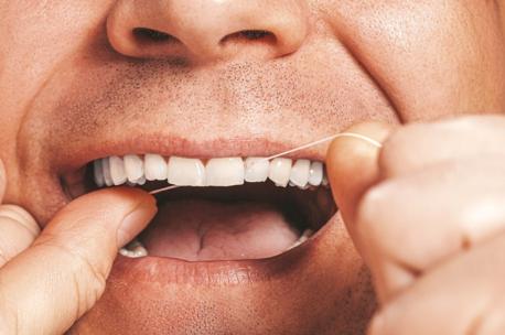 Ideal Smiles Dental Best Teeth Whitening