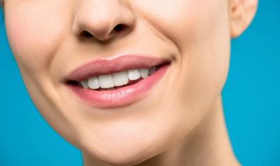 Ideal Smiles Dental Teeth Whitening
