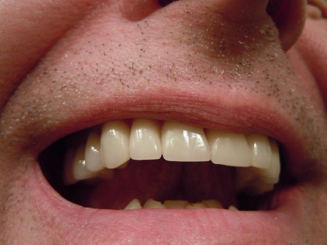 Dental crowns | Dentists NY